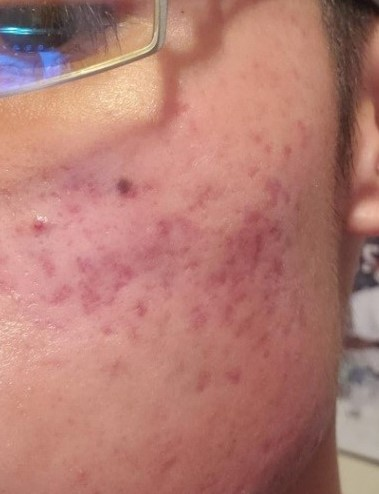 After Acne