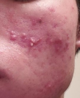 Before Acne